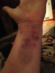 One of many bruises.